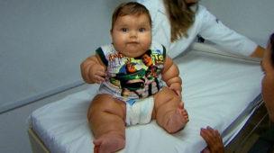 obesidade criança